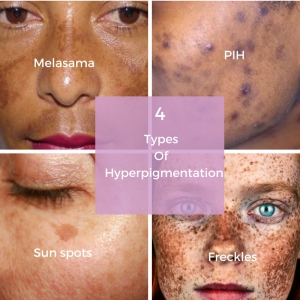 how to treat your hyperpigmentation