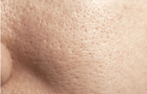 What everyone needs to know about the different skin types
