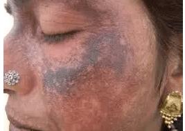 skin bleaching-ochronosis