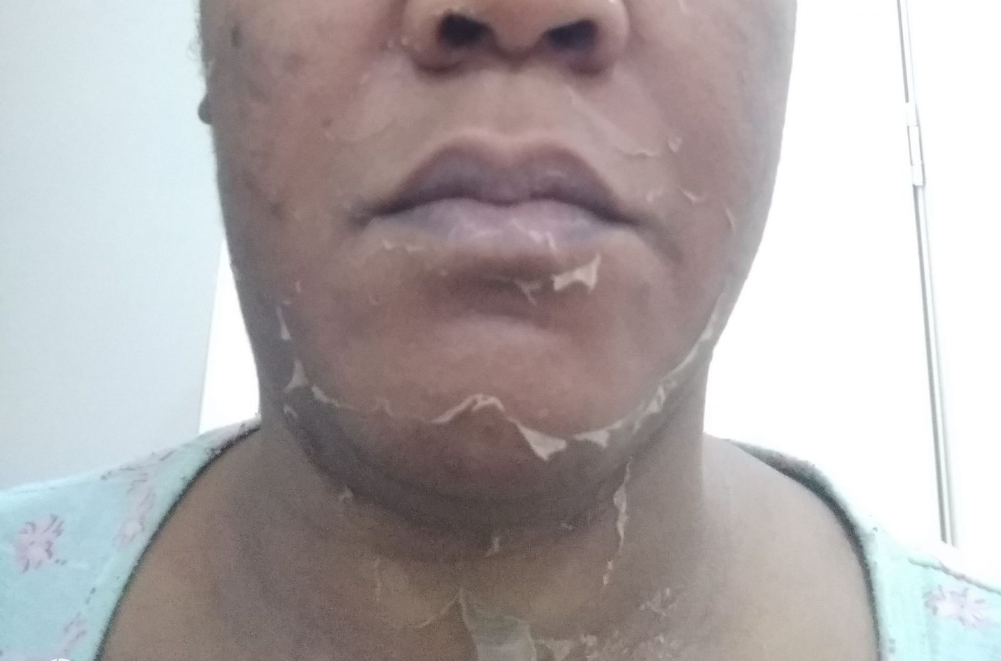 My chemical peel experience in Abuja -Nigeria