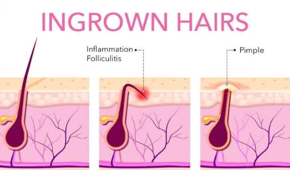 Electrolysis hair removal