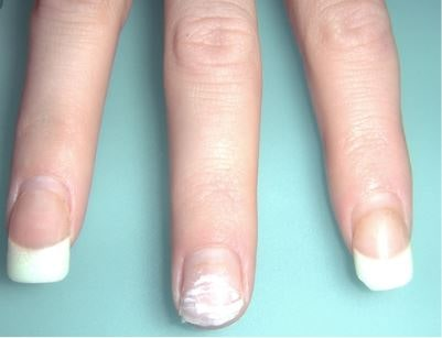 dangers of acrylics nails