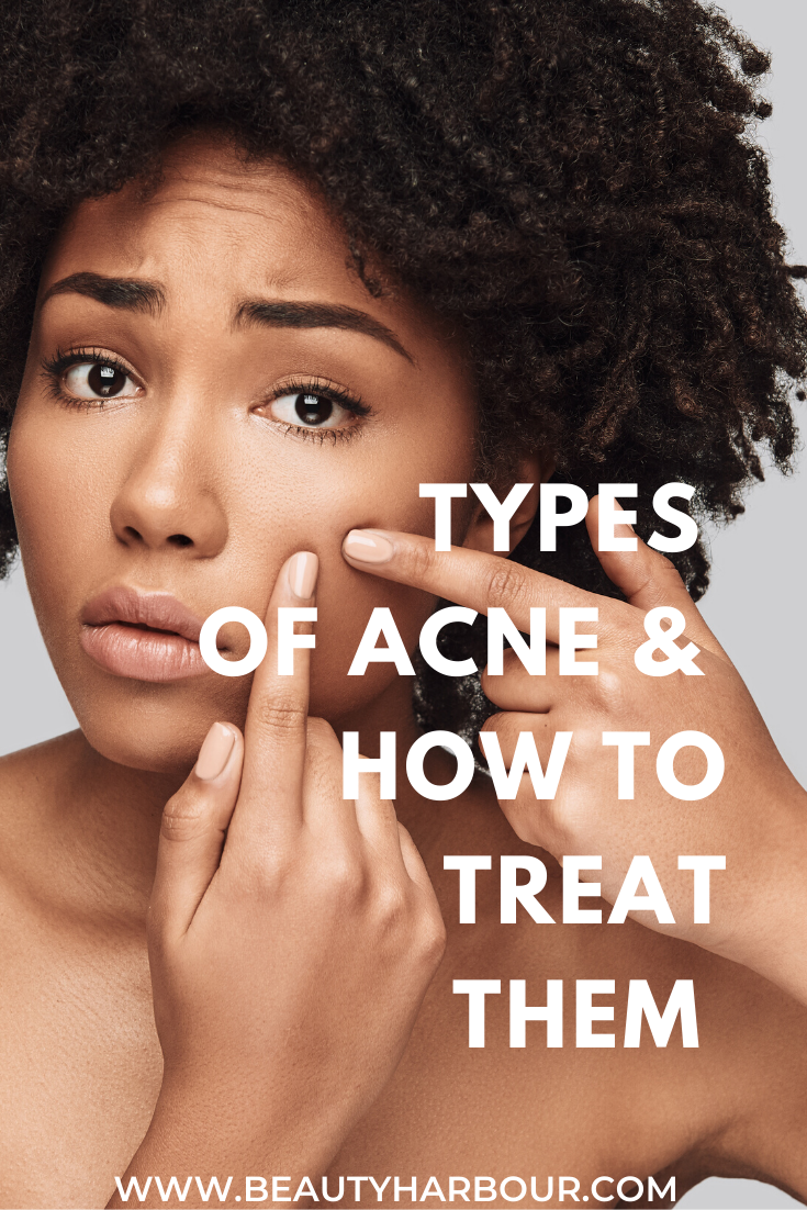 Learn the 4 types of acne, the symptoms and how you can treat them