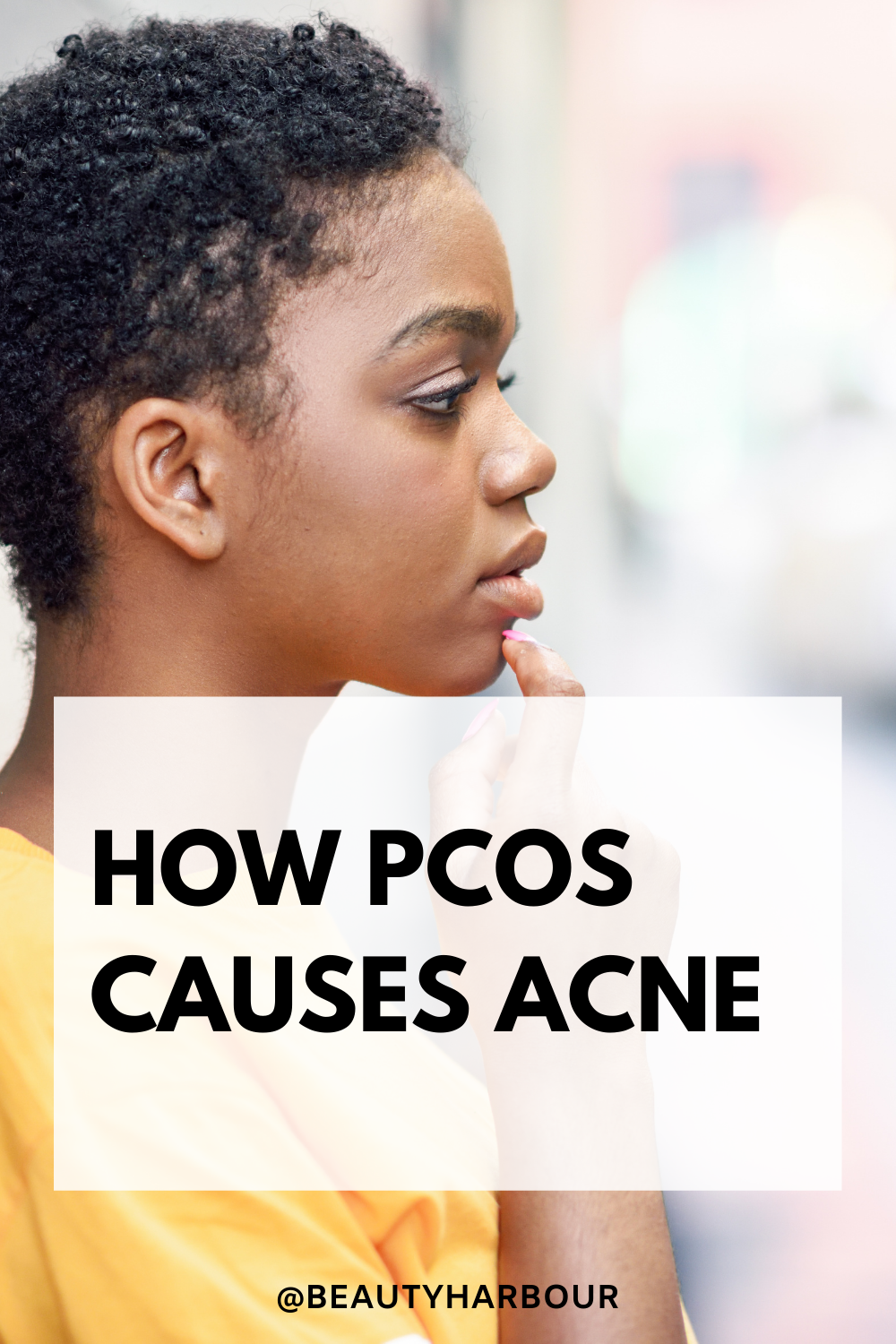 PCOS ,Polycystic ovarian syndrome and acne